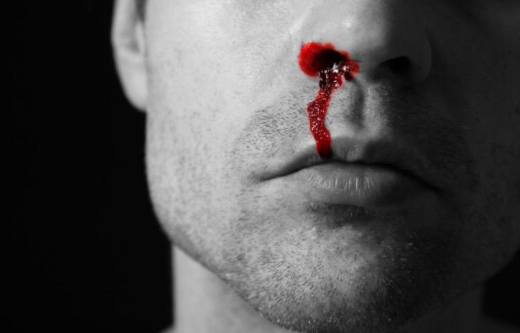 Tempo seco e sangramento nasal: como evitar